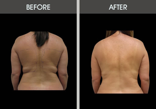 ee2acec5e7 ... Back View  Bra Bulge Lipo Before And After