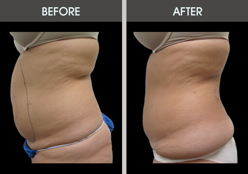 Liposuction Before And After Stomach Liposuction