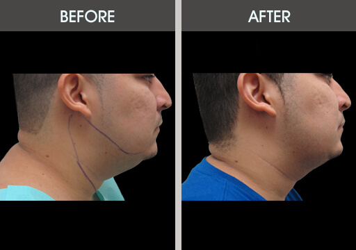 Chin Liposuction Before And After Gallery Chin Fat Lipo